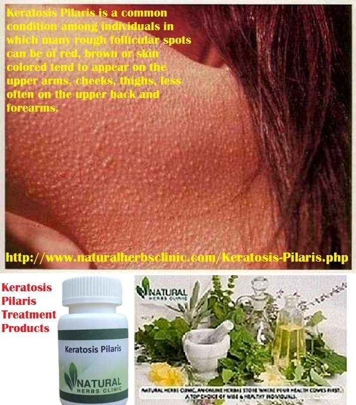 Keratosis Pilaris Treatment Products